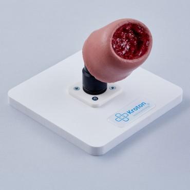 Surgical removal of uterine leiomyomas